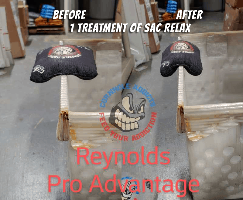 Relaxed Pro Advantage before and after
